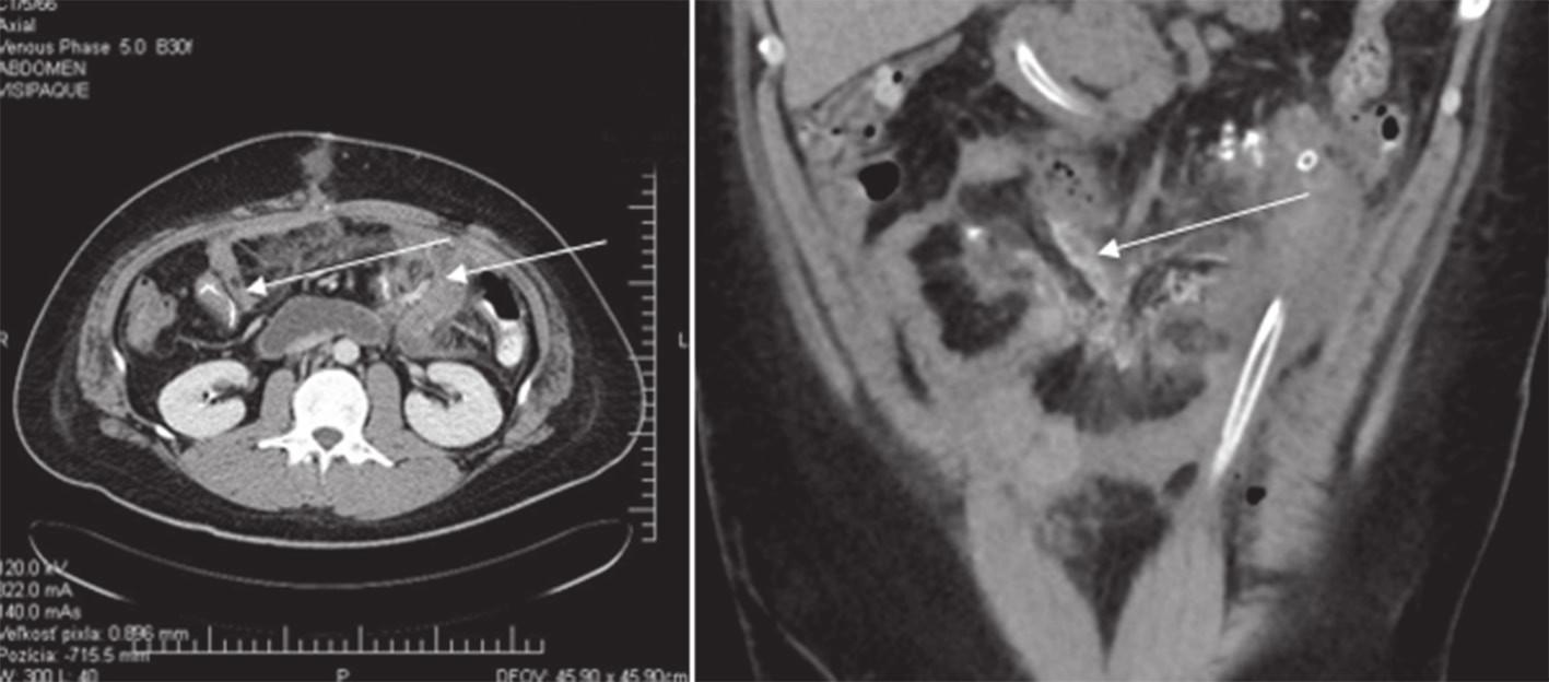 Obr. 3 a 4: CT obraz - osifikácie na tenkom čreve a mezentériu Figs. 3 and 4: CT image - ossification of the small intestine and mesentery