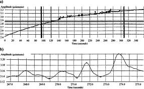 Grafické vyjádření průběhu měření parametrů ESC.  User Manual, Med-Storm Stress DetectorTM, Med- Storm nnovation AS, Version 1.0 English (Europe), Part number 4001. Dostupné na: <http://www.medstorm.com/pdf/1342-5MA001-22%20Manual.pdf>