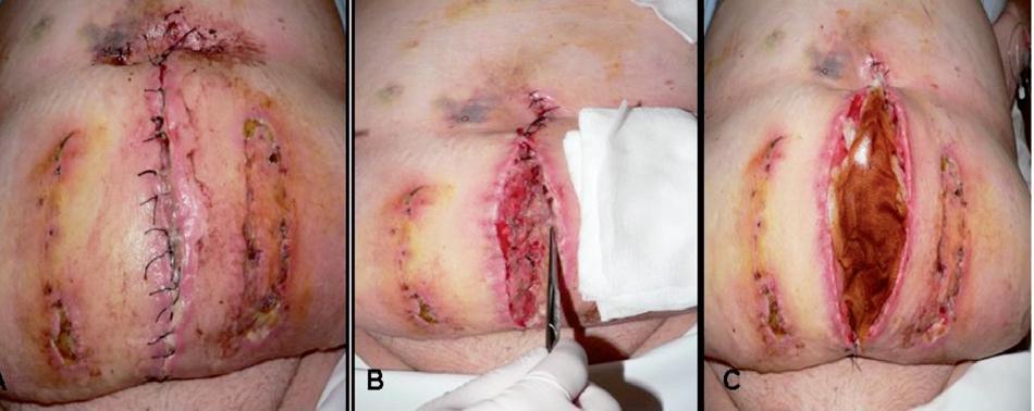 Stav rany pri príjme. A – rana imflamovaná, zapáchajúca, prítomné dekubity po ventrofiloch, B – rana po extrakcii stehov, podmínovaná, s prítomnými sínusami do dĺžky 4 cm, vypustený skolikvovaný hematóm, C – aplikovaná klasická terapia