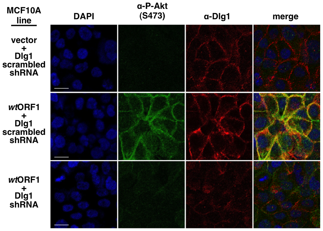 ShRNA-mediated Dlg1 depletion diminishes E4-ORF1-induced recruitment of P-Akt to the plasma membrane.