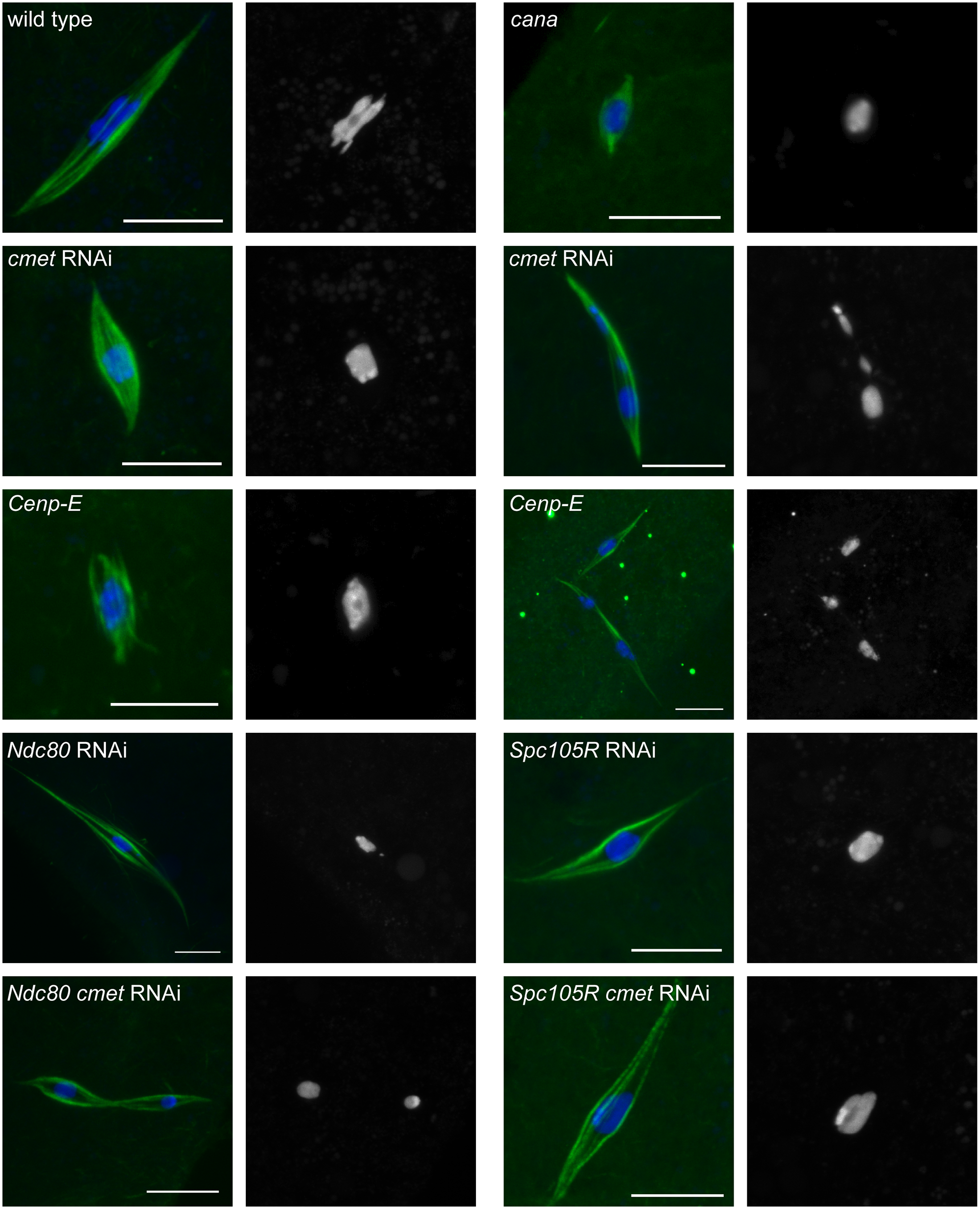 Loss of CENP-E disrupts chromosome alignment in oocytes.