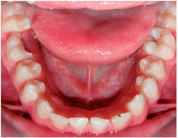 Kazuistika 2, třináctiletý pacient, dolní zubní oblouk, podélná fraktura zubu 46