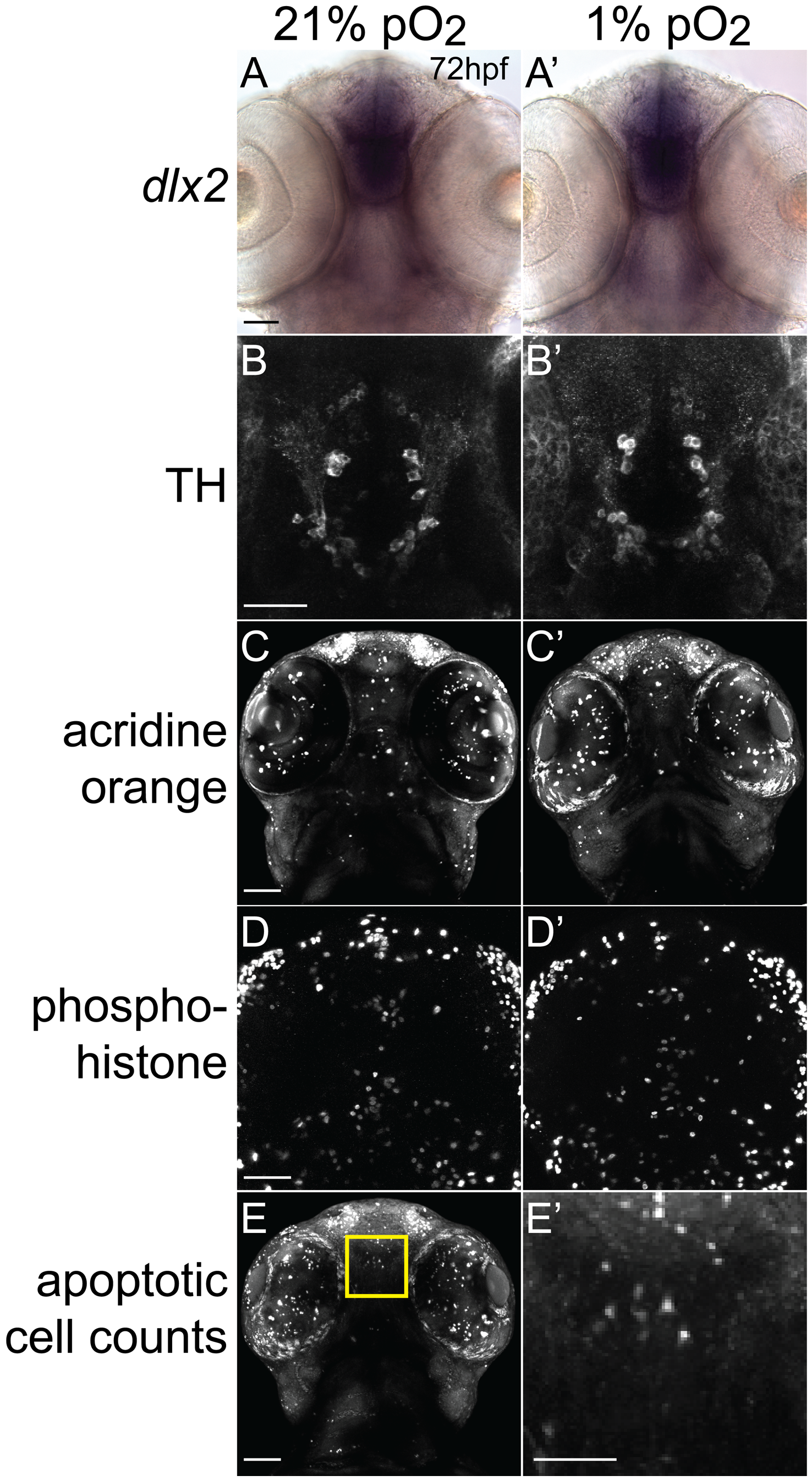 Developmental hypoxia does not affect general CNS development.