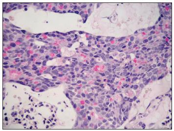 V cytoplazmě nádorových buněk byla často prokázána hlenotvorba. Trepanobiopsie, barvení mucikarmínem, velké zvětšení.