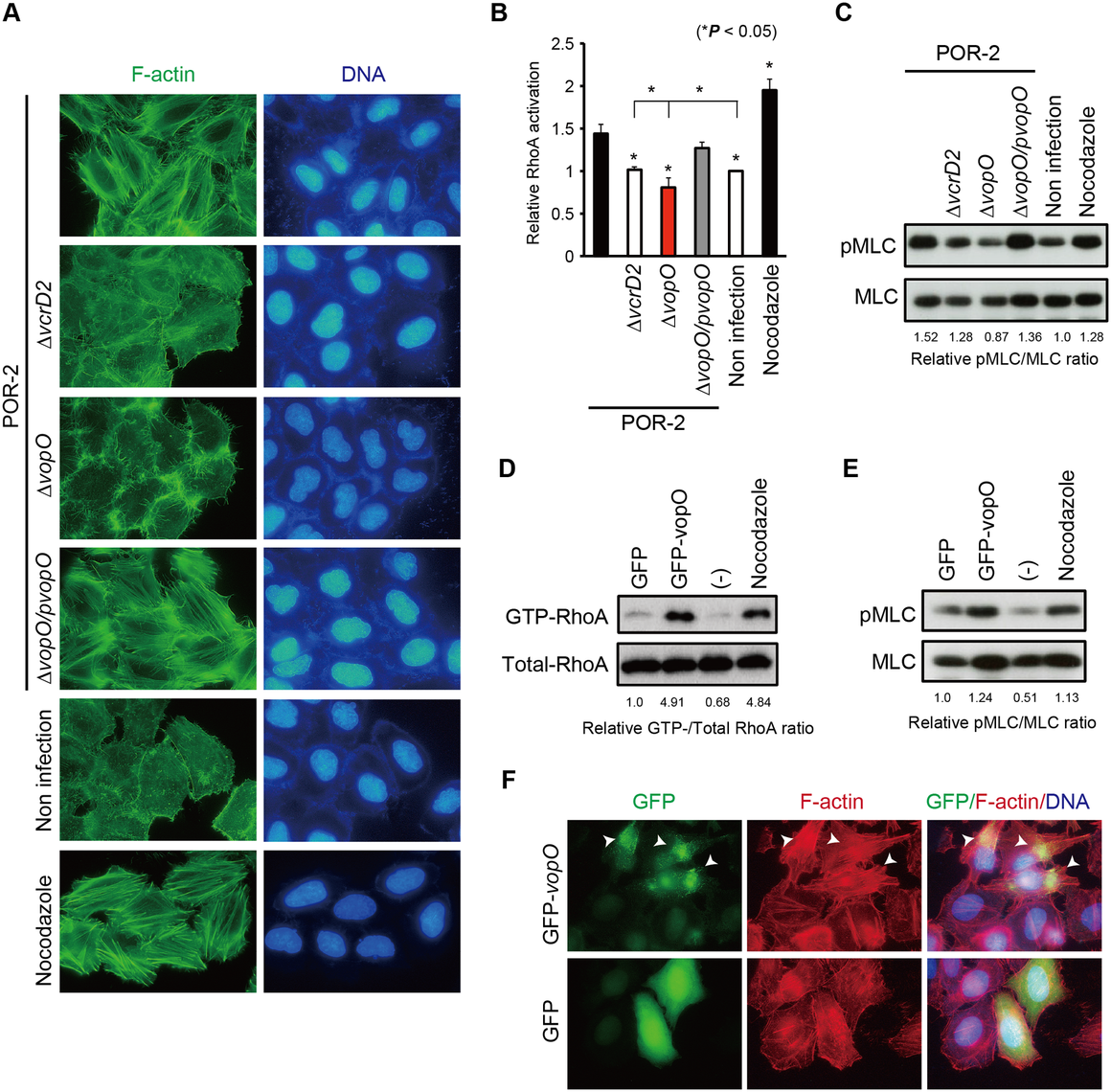 Identification of the stress fiber formation-inducing T3SS2 effector VopO.