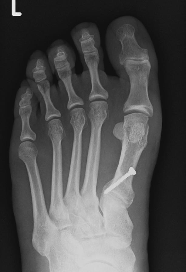Obr. 6 b – rtg snímek po operaci, po korekční osteotomii báze I. MTT.