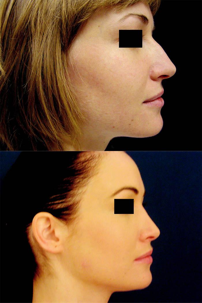 Redukce tkání u profiloplastik. a) snížení septa o 4 mm; b) středně mohutné snesení hřbetu; c) kořen ponechán intaktní; d) větší redukce alárních chrupavek; e) septum nezkráceno