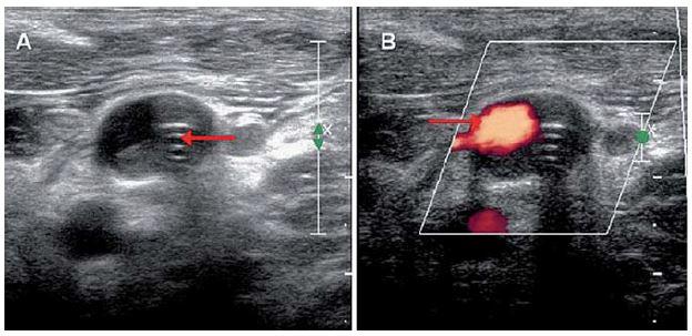 Ultrasonografie, příčná projekce.