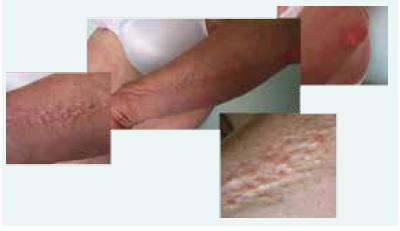 Fotografie kůže pacientky se skleromyxedémem: dobře patrná je lineární konfigurace papul