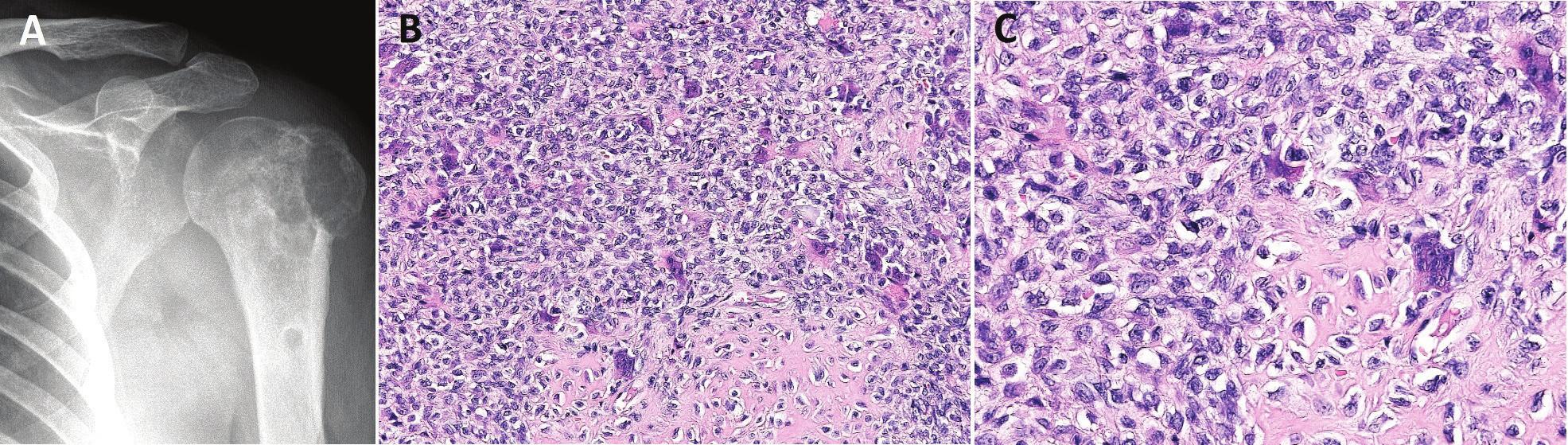Chondroblastom.