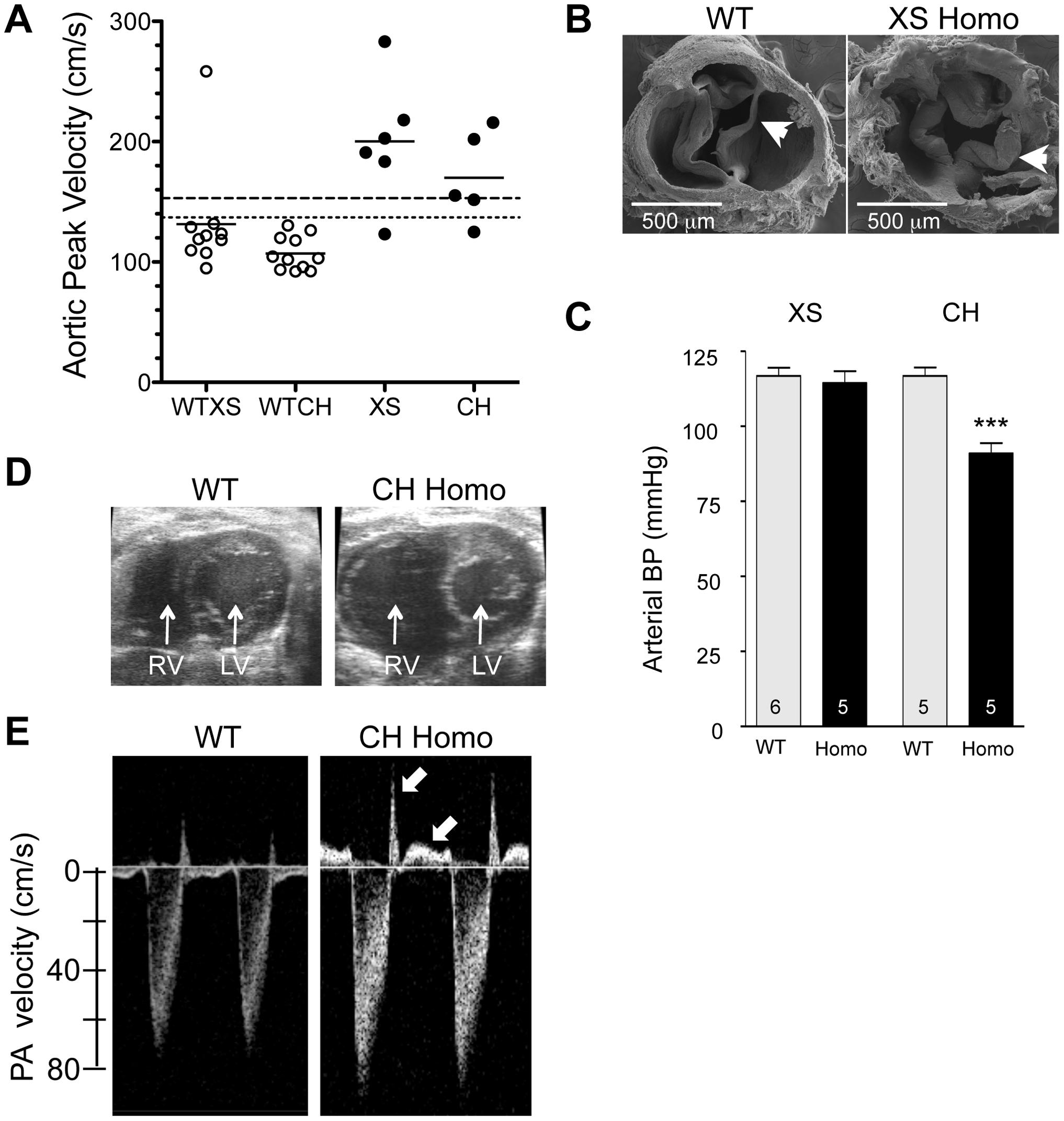 Cardiovascular changes in adult homozygous (homo) gene deletion mutants.