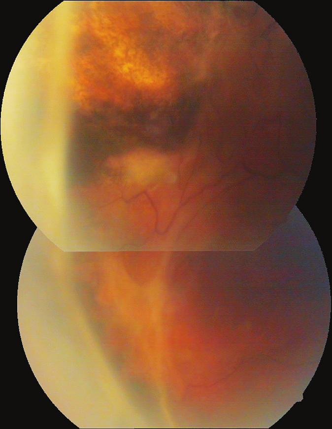 Pacientka č. 3 – Vitreoretinální proliferace před PPV (leden 2010)
