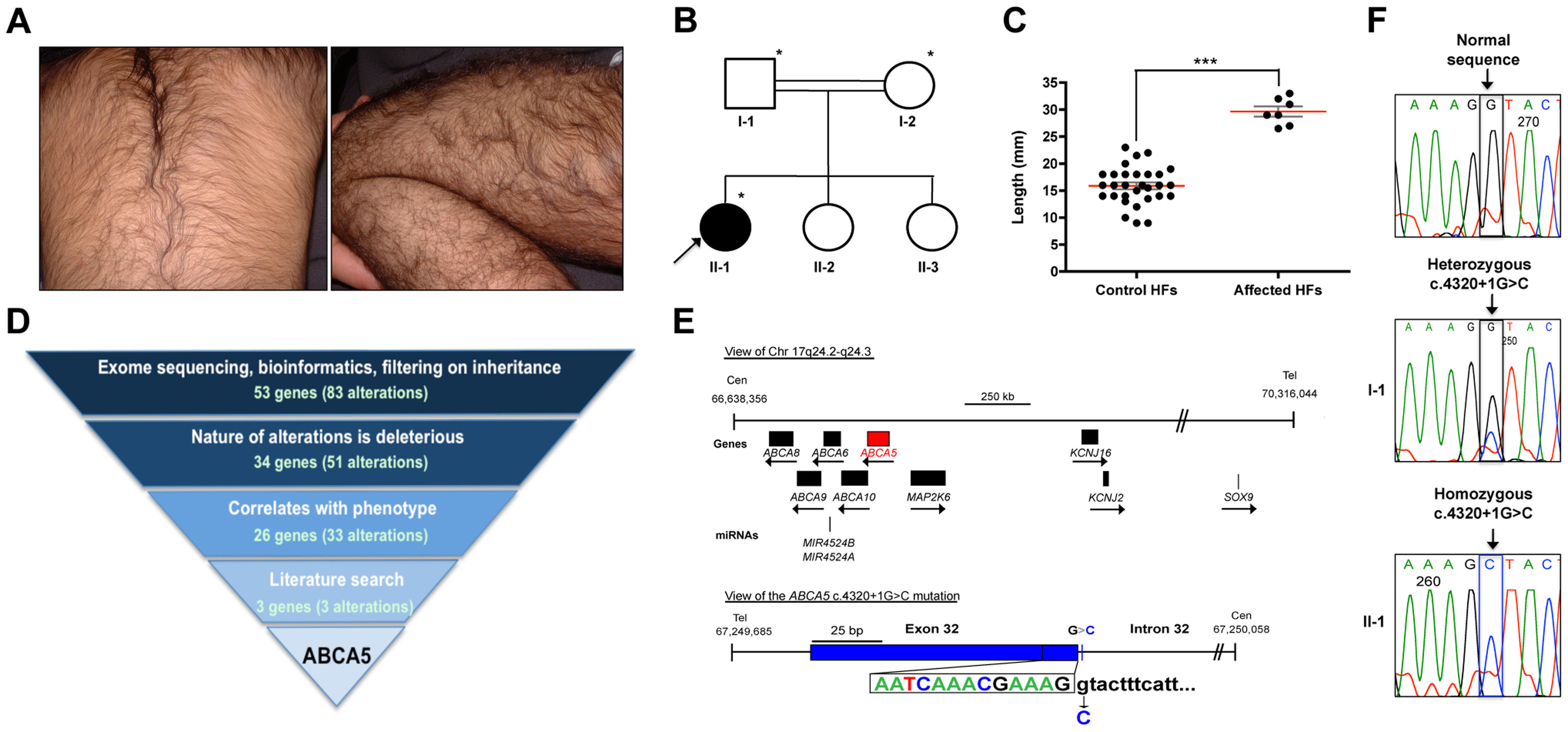 Whole-exome sequencing in a case of congenital generalized hypertrichosis terminalis (CGHT) revealed a splice site mutation in <i>ABCA5</i>.