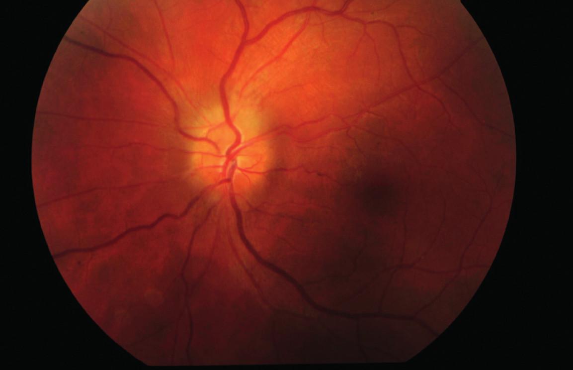 Očné pozadie ľavého oka (7/2013) – edém papily zrakového nervu.