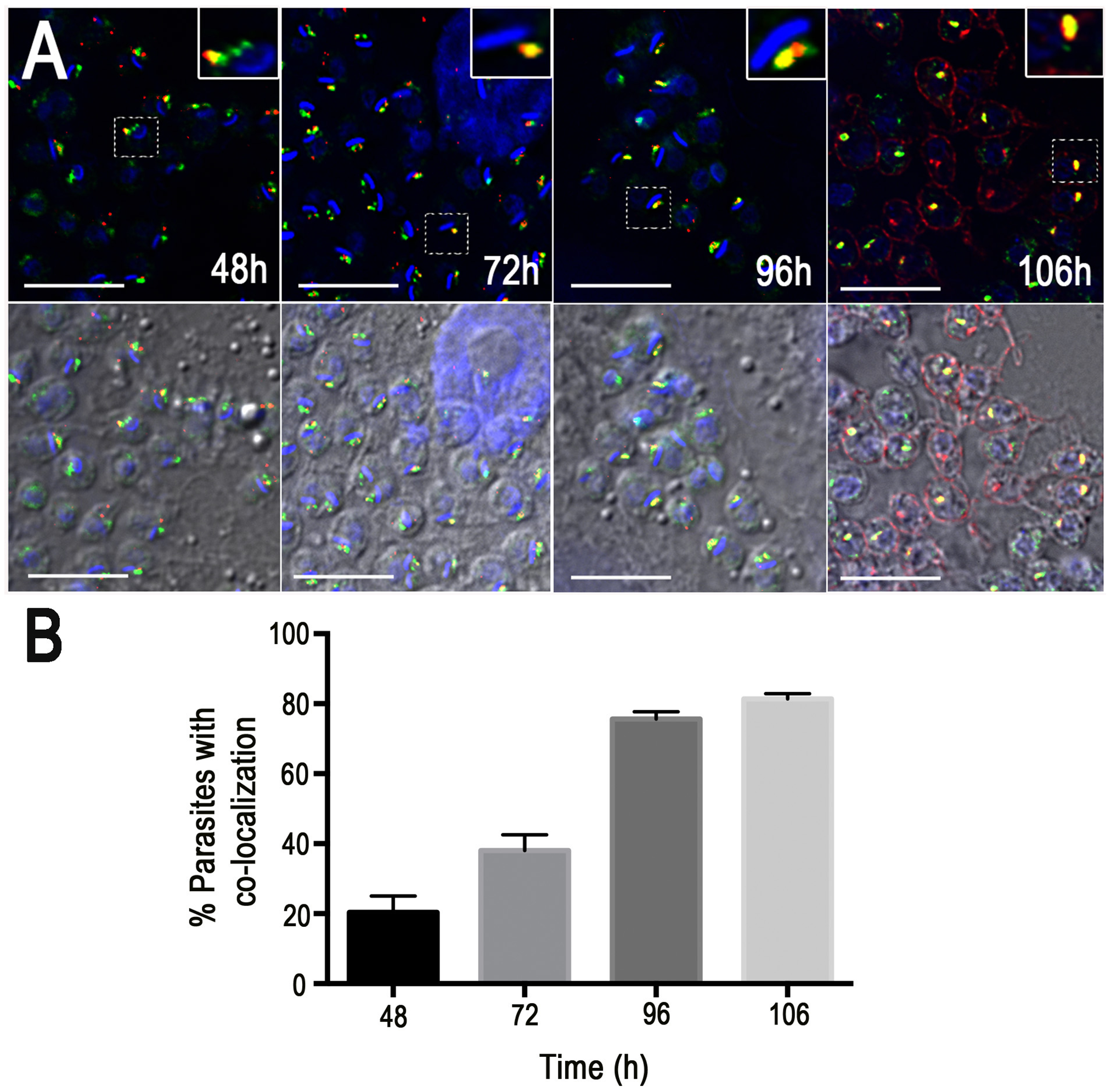 Co-localization of GFP-TcRab11 and TcTS during amastigote differentiation in human foreskin fibroblasts.
