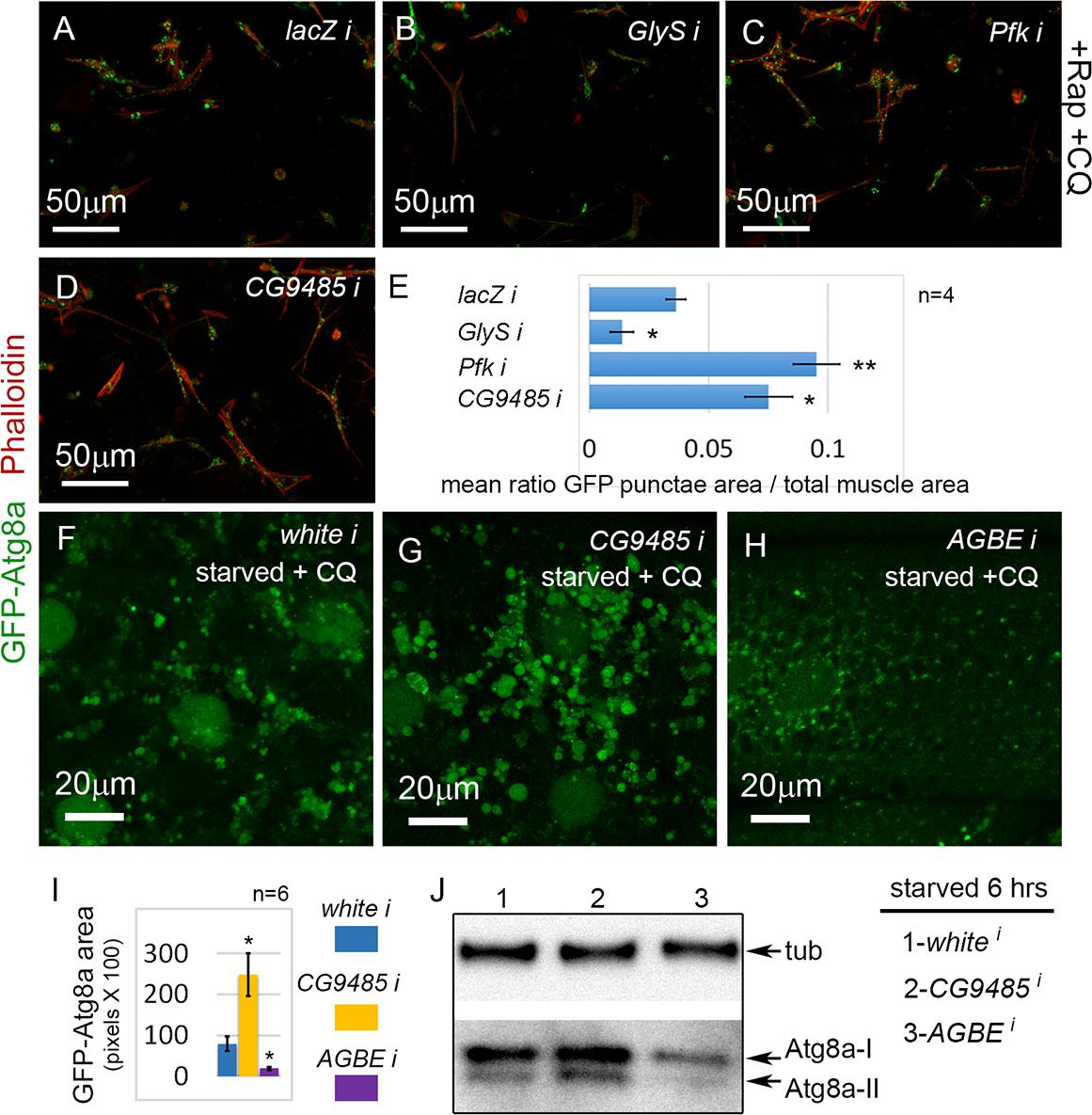 Glycogen metabolism enzymes are autophagy regulators in skeletal muscle.