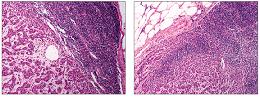 Dvě ukázky histologického obrazu (řezů) metastázy duktálního karcinomu prsu do sentinelové uzliny, barvené hematoxylinem a eosínem.