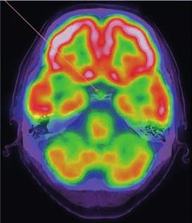 PET-CT mozku, axiální řez