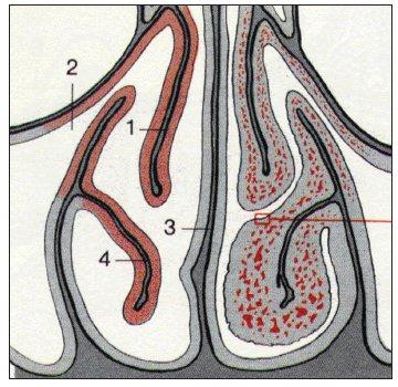 Průřez nosními dutinami ve frontální rovině (podle Beckera).<br>1 – střední skořepa, 2 – vyvod čelistní dutiny, 3 – nosní přepážka, 4 – dolní skořepa, vlevo jsou cévy rozšířené – nazální cyklus.