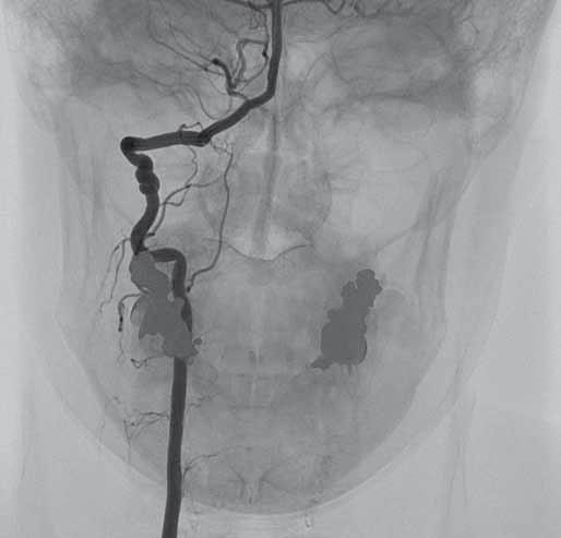 Digitální subtrakční angiografie. Pravá a. vertebralis se známkami fibromuskulární dysplazie. Fig. 3. Digital subtraction angiography. Right vertebral artery with signs of fibromuscular dysplasia.