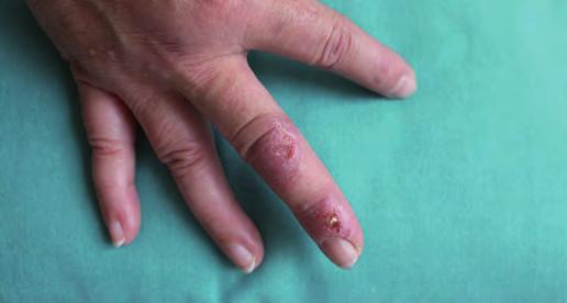 Dva defekty na třetím prstu pravé ruky před léčbou.
