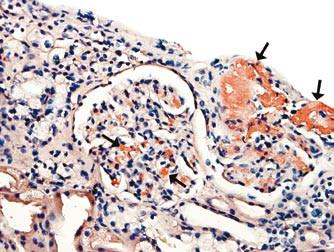 Depozita amyloidu v mesangiu ledvinného glomerulu a ve stěně arteriol (u šipek).