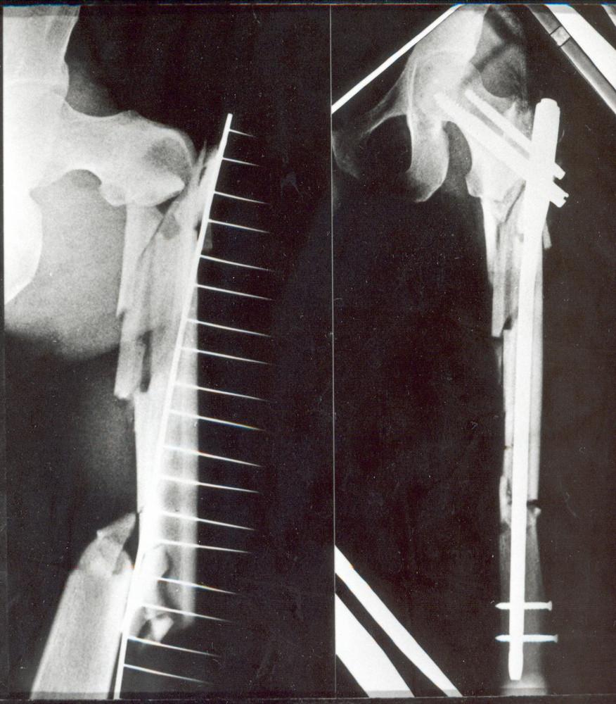 Pacient, 40 let, s tříštivou zlomeninou jdoucí od tuberculum innominatum až značně distálně do diafýzy (typ VI.) a) úrazový snímek, b) stav po osteosyntéze zlomeniny PFN, postavení fragmentů je velmi dobré