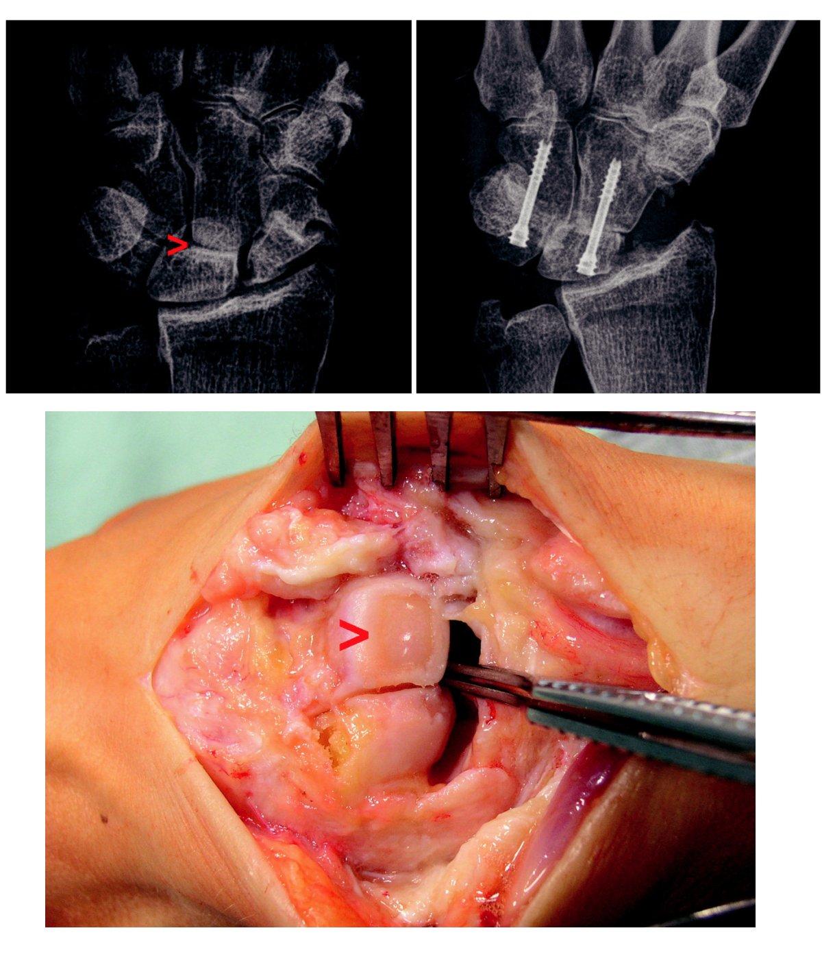 a) Pakloub člunkové kosti s artrotickými změnami typu SNAC III, šipka ukazuje oblast postižení mediokarpálního kloubu se zúžením kloubní štěrbiny a subchondrální sklerózou. b) Peroperační nález u téhož pacienta, šipka ukazuje na úplnou ztrátu chrupavky v oblasti hlavice os capitatum. c) Stav po zhojené čtyřrohé fúzi pomocí kostních štěpů a 2 šroubů Herbertova typu.
