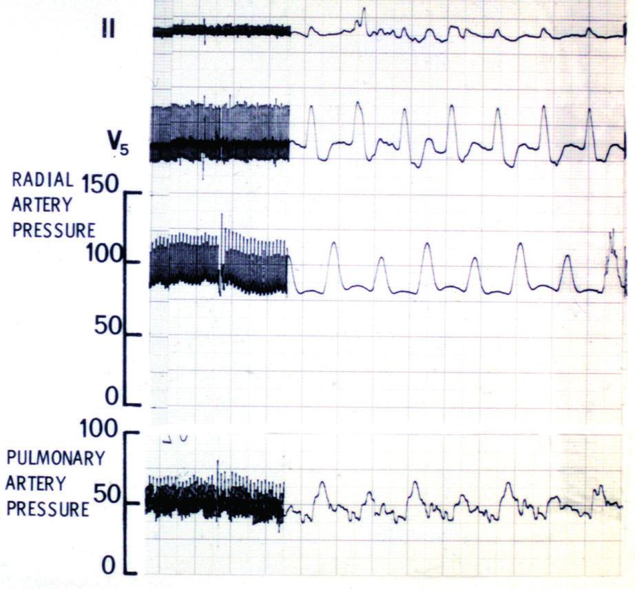 Záběr kontinuálního intraoperačního monitorování EKG a tlakových křivek