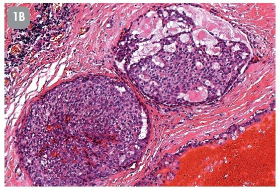 Případ č. 1(A, B): Žena, 50 let. Nádor parotis průměru 15 mm.  Klinická diagnóza Warthinův tumor.