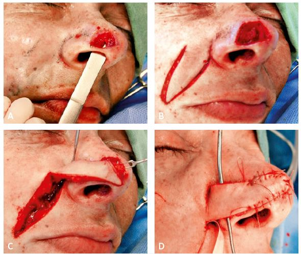 A–D. Sequence of reconstruction of a penetrating defect of the nasal tip with interpolation nasolabial flap in combination with nasal mucosal advancement