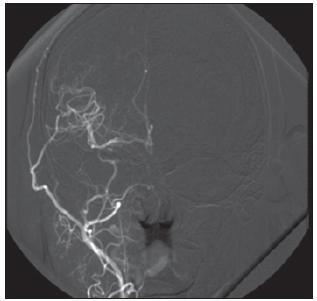 Příklad nejlepšího stupně 3b plnění bypassu, anastomózou je zásobena i a. cerebri anterior.