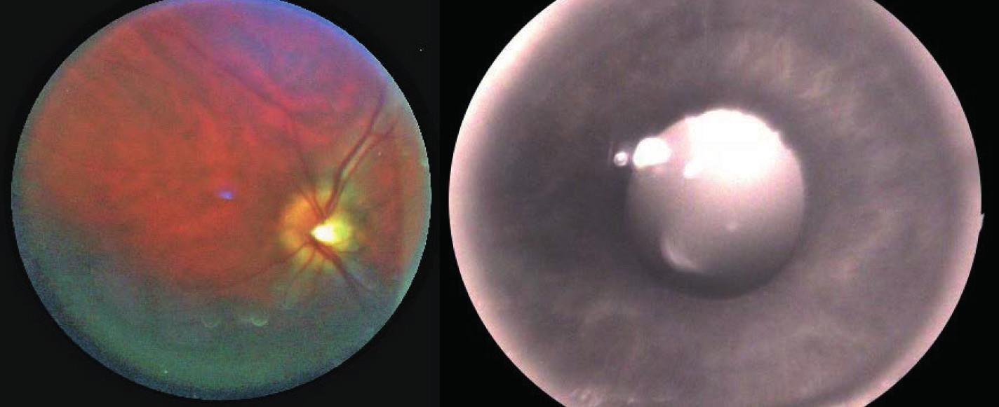 Snímek sítnice (vlevo) a duhovky (vpravo) oka z našeho laboratorního zařízení
