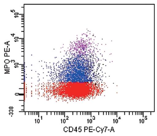 Akutní leukemie se smíšeným fenotypem T/My (WHO 2008). T lymfoidní komponenta (červeně): CD1a+, cCD3+,CD7+, CD34+, CD45 slabě. Myeloidní komponenta (modře): CD13+ (zde nezobrazeno), CD33+, MPO+, CD45 slabě.