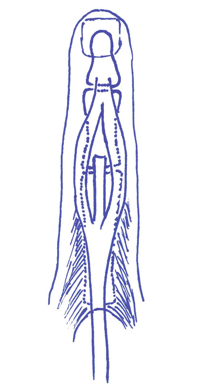 Schéma distální části extenzorového aparátu prstu. Centrální pruh se upíná na bázi středního článku, postranní pruhy na bázi článku distálního.