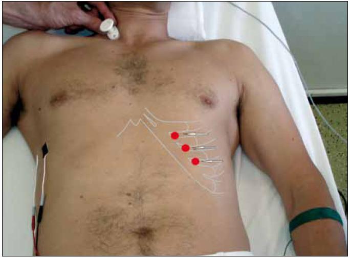 Neurofyziologické vyšetření bránice. Stimulace n. phrenicus mezi oběmi hlavami kývače s registrační elektrodou (černá) umístěnou v 7. mezižebří v úrovní přední axilární čáry. Referenční elektroda je umístěna ve stejné výši ve vzdálenosti 3–4 cm směrem nazad (modifikace metody dle Newsom-Davise, 1967).  Vlevo jsou zaznačeny místa bezpečné inzerce EMG jehly – v 7.–9. mezižebří, 2–3 cm laterálně od okraje žeber (Podnar, 2007).