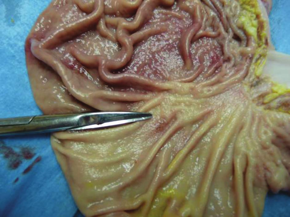 Žaludek po odstranění OTSC klipu Fig. 3: Stomach after the OTSC clip removal