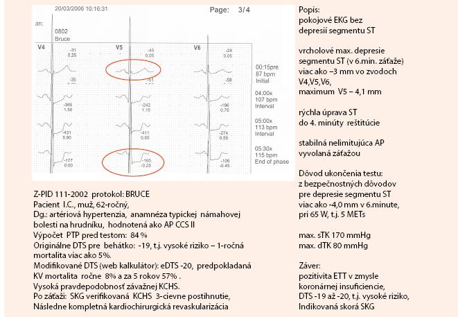 Kazuistika – záťažový test pacienta s typickou námahovou bolesťou na hrudníku (1. časť). Dokumentácia: archív autorky
