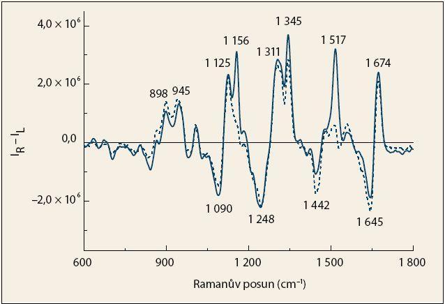 Průměrná spektra ROA krevní plazmy pacientů s karcinomem pankreatu (čárkovaná čára)  a kontrolních jedinců (plná čára). Fig. 2. The average ROA spectra of blood plasma from patients with pancreatic cancer (dashed line) and control subjects (solid line).
