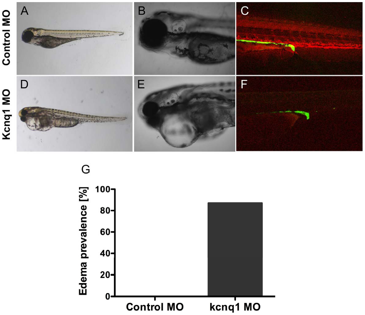 <i>Tg(cdh17:GFP)</i> embryos were injected with 200 uM control or kcnq1 morpholino (MO) at the 1-cell stage.