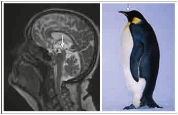 Standing penguin silhouette (příznak stojící tučňáka). Šipky ukazují opět na fokální atrofii tegmenta.