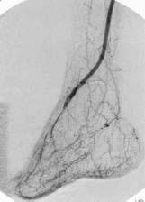 Angiografie 12 měsíců po provedeném bypassu s distální anastomózou na a. dorsalis pedis.