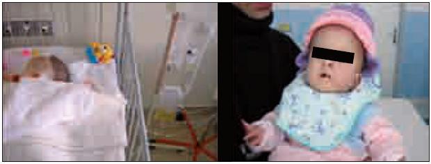 Externá drenáž likvoru, ktorý i makroskopicky je zmenený. Pri kontrole na ambulancii, v tom čase živená cez NGS.