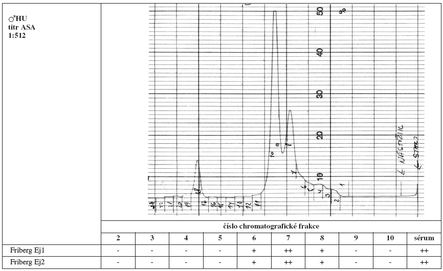 Tab. 2a. Srovnání výsledků Fribergova testu pro jednotlivé chromatografické frakce séra HU. - - negativní, (+) - slabá pozitivita, + - pozitivita, ++ - silná pozitivita