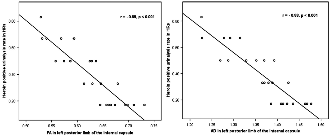 Graphical presentation of significant correlations between the heroin-positive urinalysis rate (corrected for age, years of education, duration and dosage of smoking, and heroin/methadone use) within 6-month follow-up after baseline and FA/AD values in the left posterior limb of internal capsule in heroin relapsers.