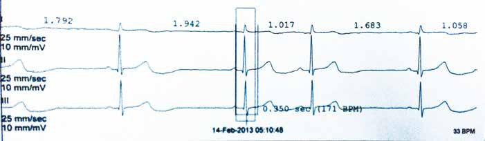 Minimální TF během Holterovy monitorace – sinusová bradykardie 33/min.