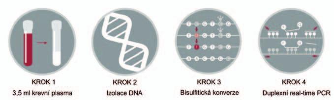 Schematické znázornění laboratorních kroků u vyšetření SEPT9.