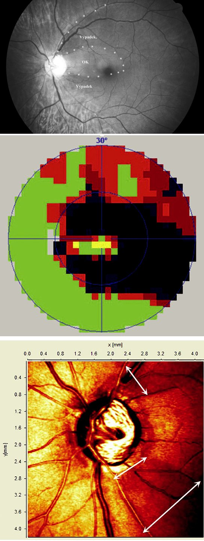 Ukázka korelace velkého výpadku VNV ve snímku sítnice (a) s perimetrickým vyšetřením (b) a vyšetřením pomocí HRT2 (c)