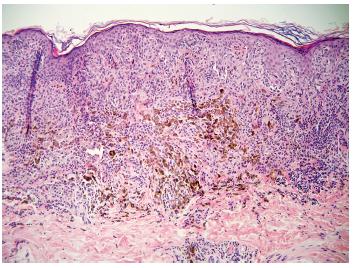 Obr. 4b. Uprostřed intradermální komponenty smíšeného névu je okrsek pigmentovanějších melanocytů s melanofágy