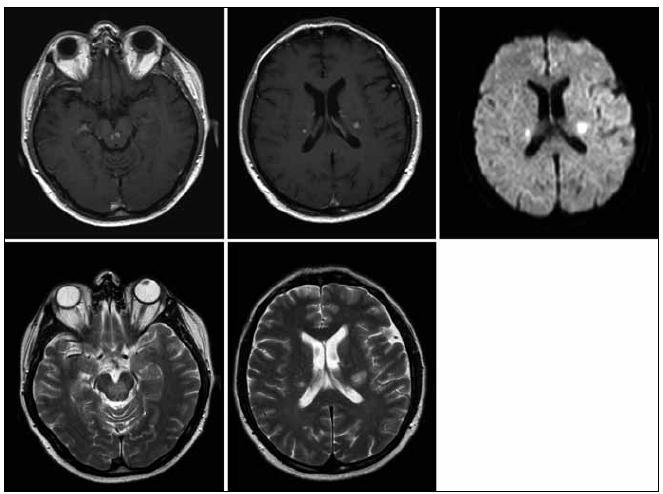 MR zobrazení mozku z 28. 5. 2009. Pokud považujeme 1. vyšetření (22. 1. 2009) jako vyšetření referenční před léčbou, pak se na 1. kontrole v průběhu léčby (28. 5. 2009) obraz nijak nemění, velikost i sycení ložisek infrai supratentoriálně je stejné.